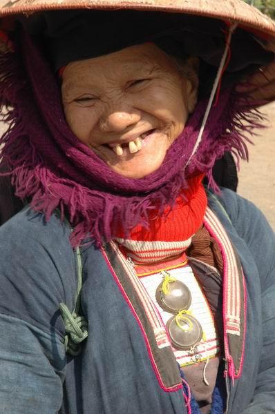 וייטנאם - שן חולצת